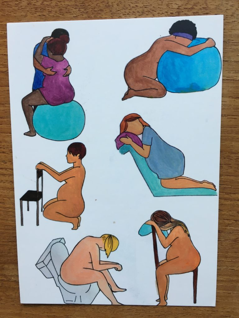 förlossningsställningar